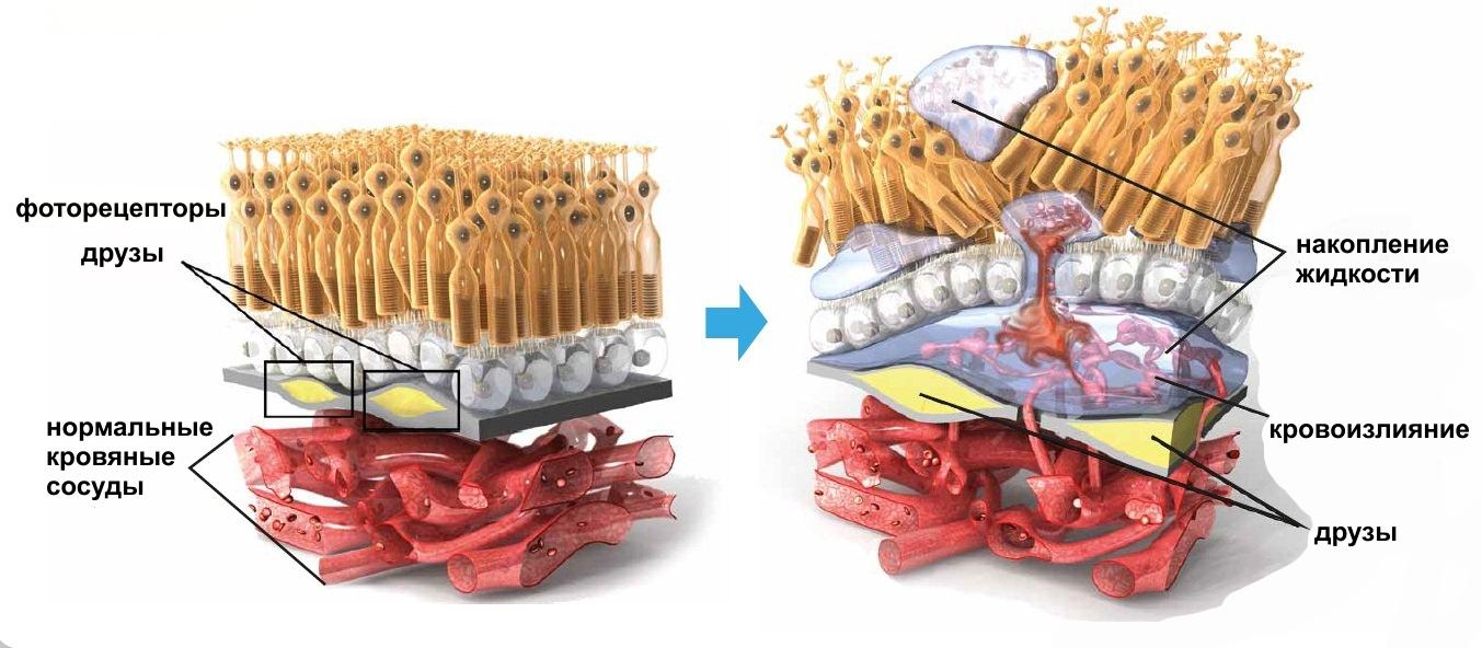 Дистрофия сетчатки где сделать операцию