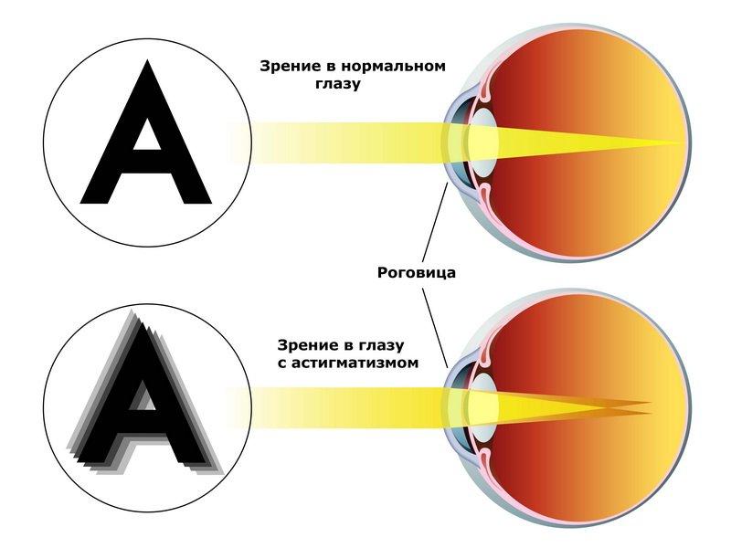 Зрение в нормальном глазу и в глазу с астигматизмом
