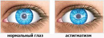 Разница: нормальный глаз и астигматизм