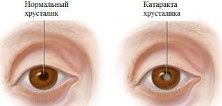 Помутнение хрусталика глаза