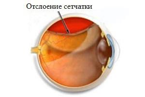 Отслоение сетчатки симптомы