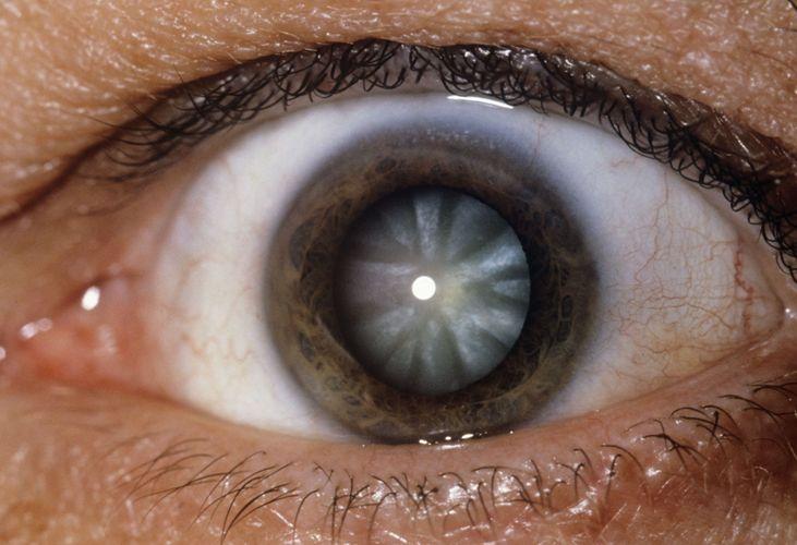 Запись на операцию катаракта