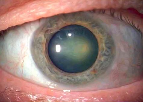 Ядерная катаракта глаз у пожилых, лечение ядерной катаракты в клинике | FedorovMedCenter.ru