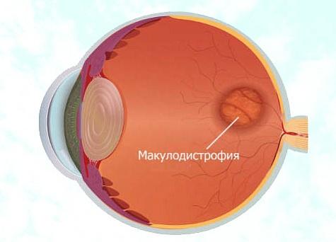 Лечение макулодистрофии сетчатки глаза в клинике | FedorovMedCenter.ru