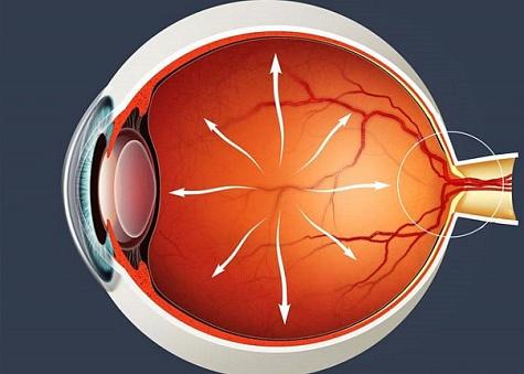 Глазное давление при глаукоме